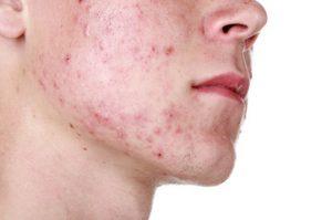 ¿Qué es el acné?